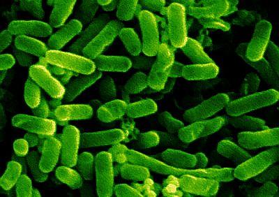 e-coli1